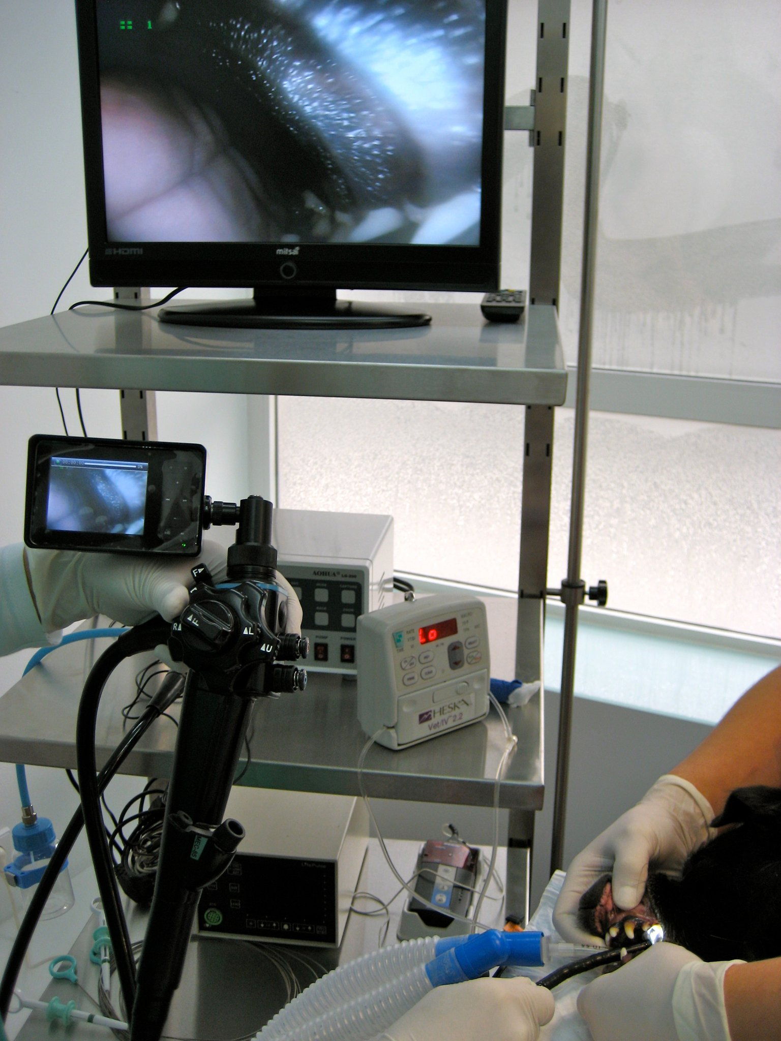 Endoscopia - HVV